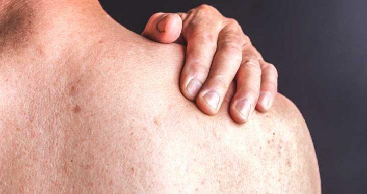 Skin psoriasis